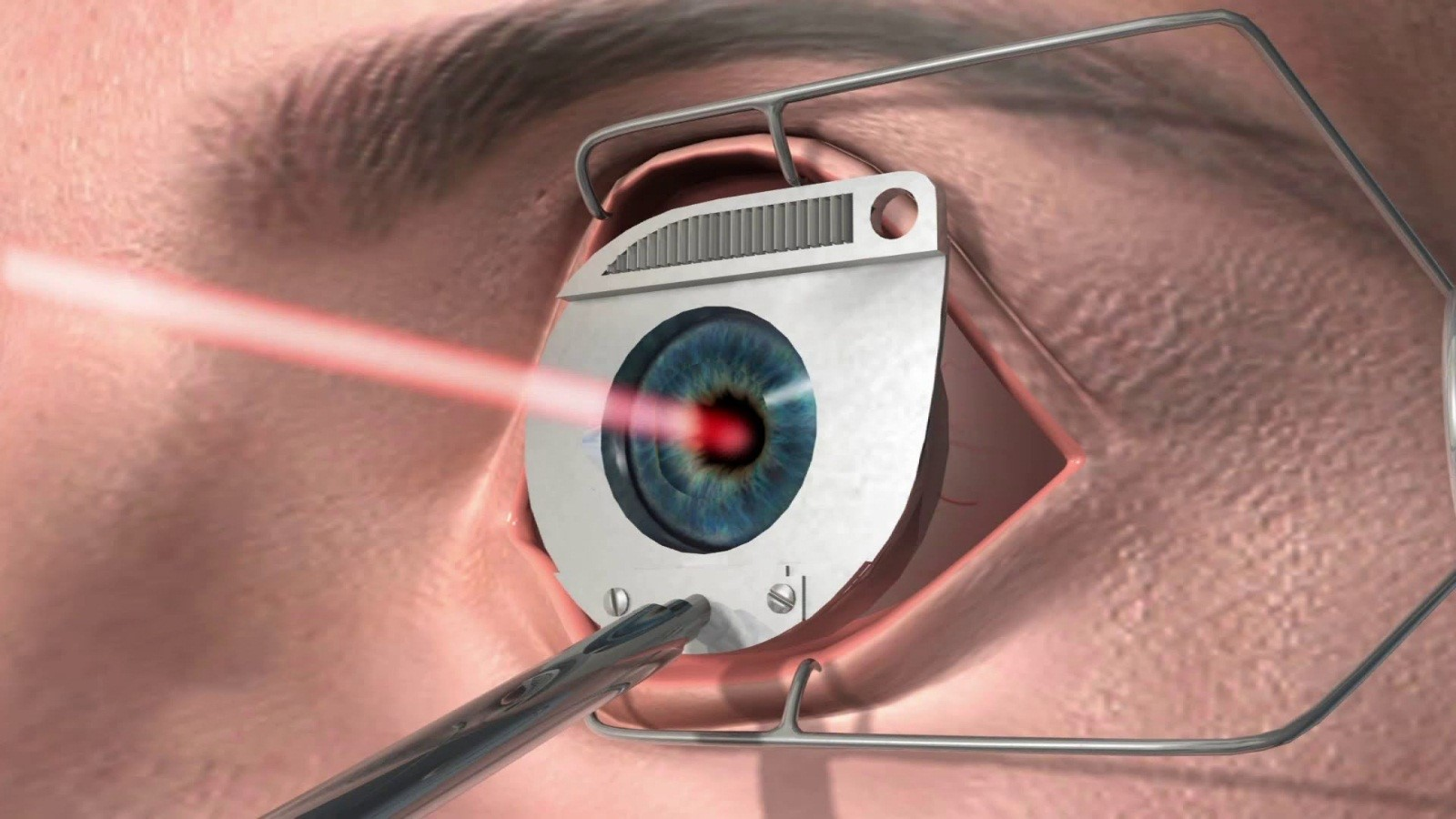 lasik eye surgery Lasik or lasik (laser-assisted in situ keratomileusis), commonly referred to as laser eye surgery or laser vision correction, is a type of refractive surgery for the.